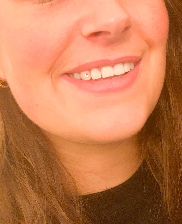 tandsteentje